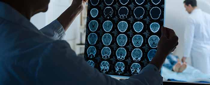 doctor looking at brain scans with mri in the background